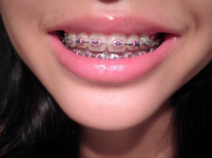 dental braces - orthodontics