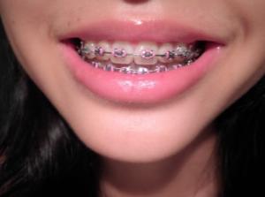 dental braces - orthodontics