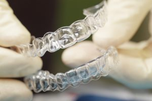 Invisalign braces - orthodontics